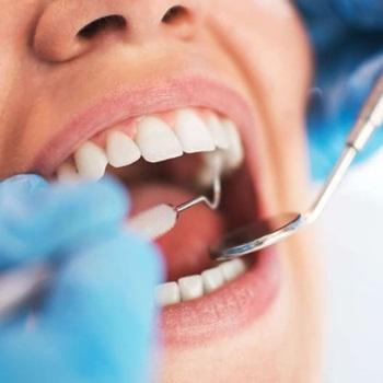 Plano de saúde cobre implante dentário